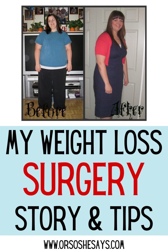 weight loss surgery patient story